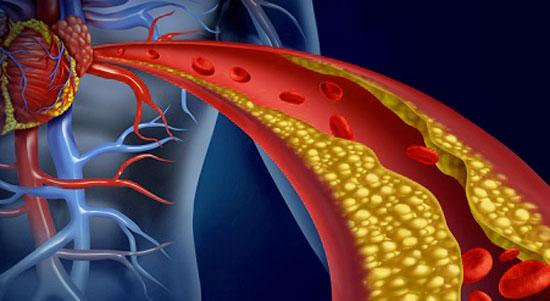 Rischi del colesterolo