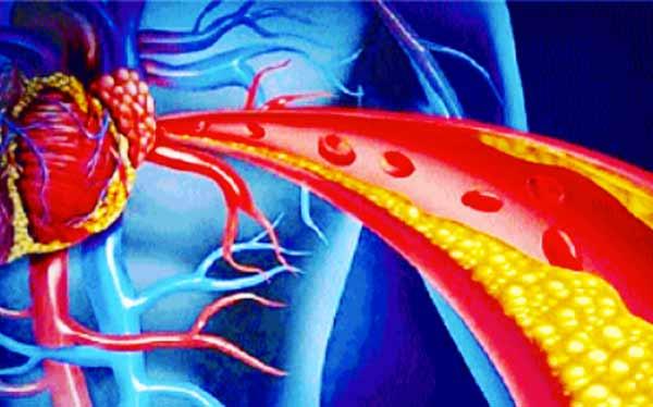 Alimentazione contro il colesterolo