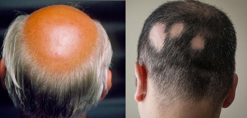Alopecia sintomi
