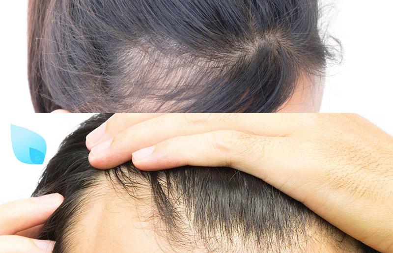 come si presenta l'alopecia