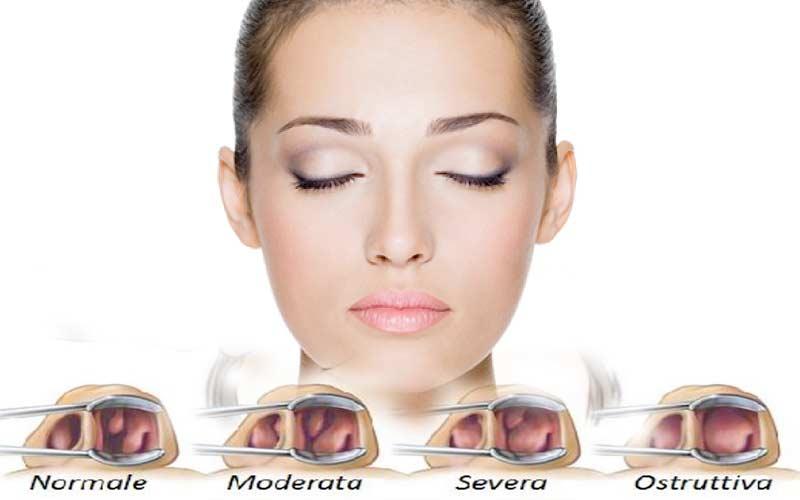 setto nasale deviato cause sintomi